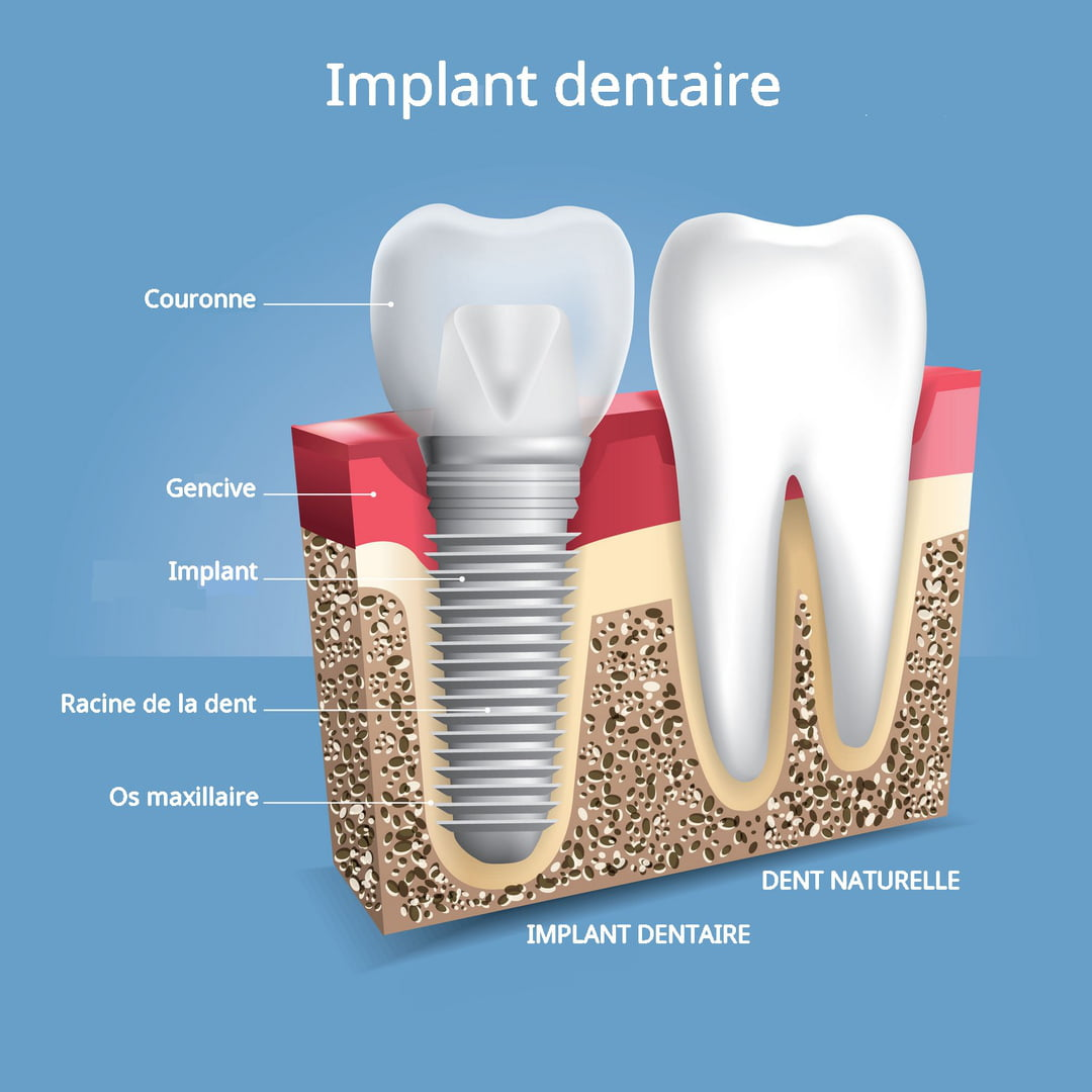 Implant dentaire : Comment le mettre en place ?